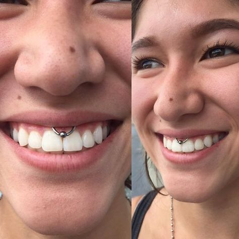 Smiley Piercing: Amazing Photos and Important Information ...