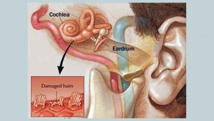 Loss Of Sensory Hair Cells Ear Sound Damaged Hair Health And Wellness