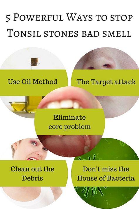 Tonsil stones pot How to