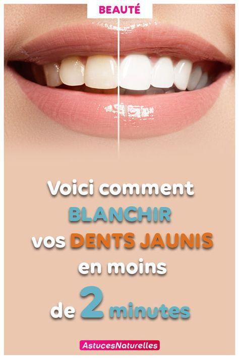 Comment Avoir Des Dents Blanches Rapidement Et Naturellement