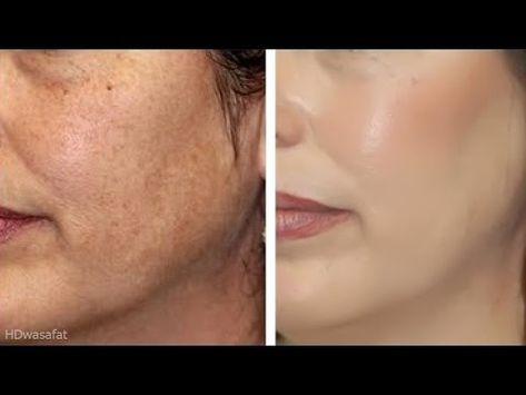علاج شيب الشعر نهائيا وللأبد من غير صبغة القضاء على الشيب المبكر التخلص من الشعر الابيض نهائيا Youtube Homemade Wrinkle Cream Hide Wrinkles Wrinkle Cream