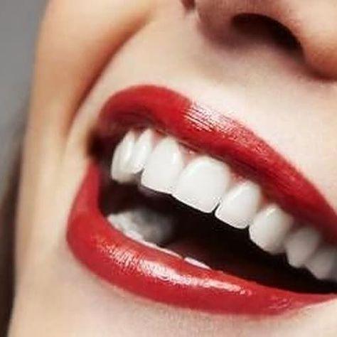 Pin Von Iqbal Momin Auf Drive E Mit Bildern Zahnkosmetik Zahnimplantat Zahne