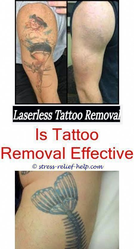 Tattoo Removal Near Me Does Laser Completely Remove Tattoo Laser Tattoo Removal Before And After Ta Tattoo Removal Cost Tattoo Removal Eyebrow Tattoo Removal