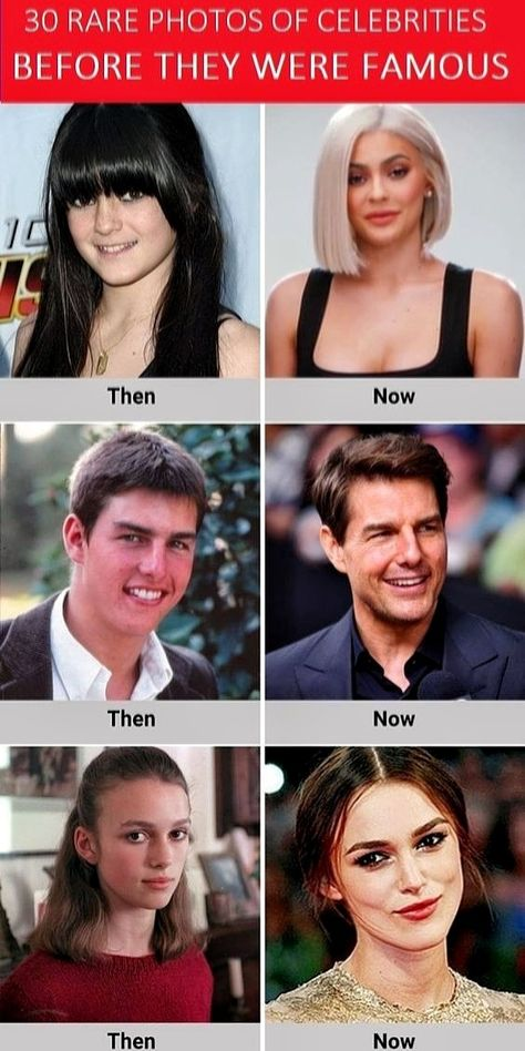 Celebrities are people with lot of talent. They look absolutely flawless on screens. However, at some point in their lives, before coming into lime light, they were ordinary people like us. Here are Rare Photos of Celebrities Before They Were Famous.