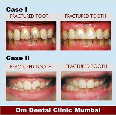 8 best Dental Clinics Mumbai images on Pinterest
