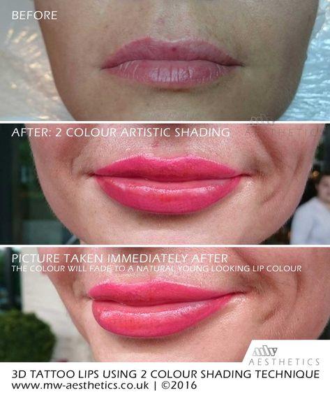 d7178db5916876b6fe54edf2fd31e607 - How To Get Swelling To Go Down On Lip