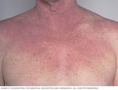 eczema causas milyen kenőcs a pikkelysömör kezelésére a könyökön