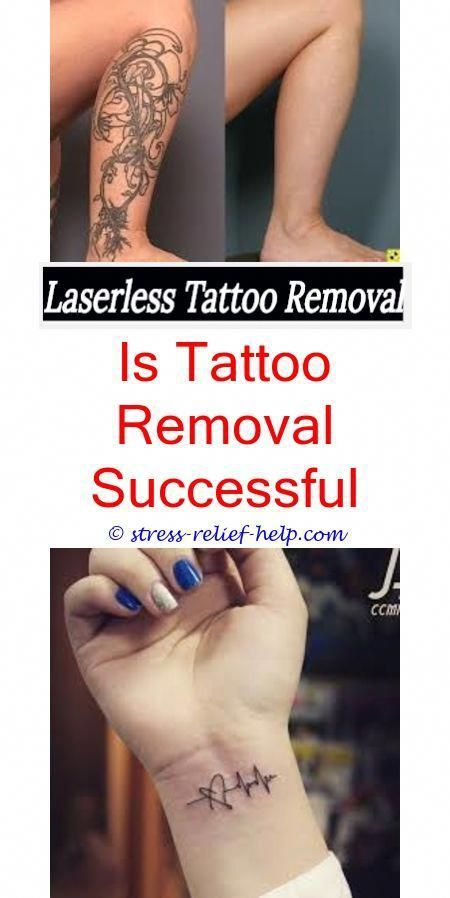 Tattoo Removal Side Effects How To Numb Skin Before Tattoo Removal Where To Get Tattoo Removal Cream In South Laser Tattoo Laser Tattoo Removal Tattoo Removal