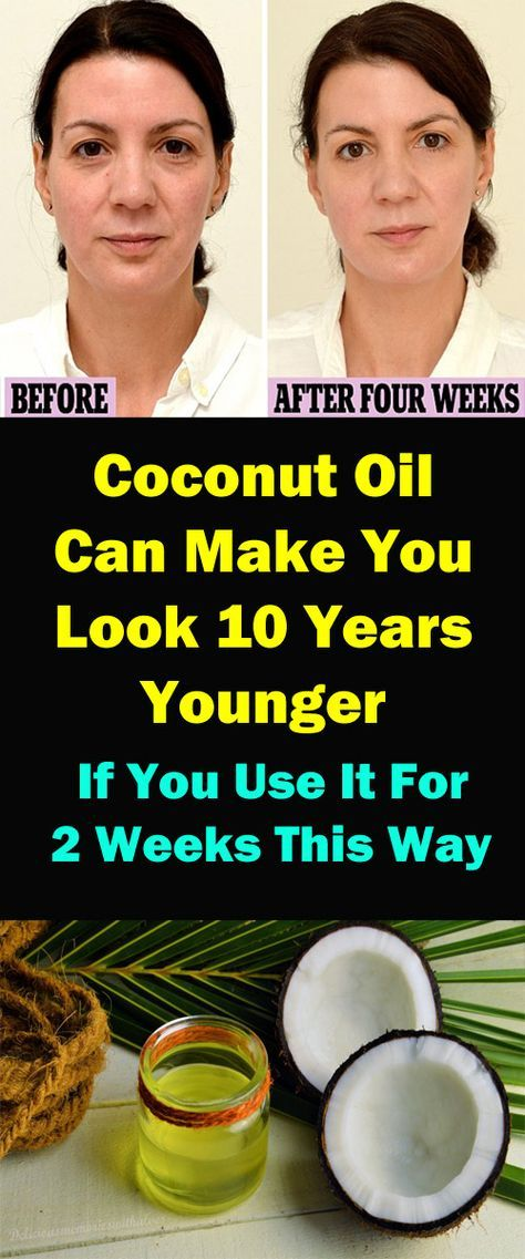 Coconut Oil Can Make You Look 10 Years Younger If You Use It For 2 Weeks Coconut Oil Is One Of T Oil Wrinkles Skin Care Treatments Top Anti Aging Products