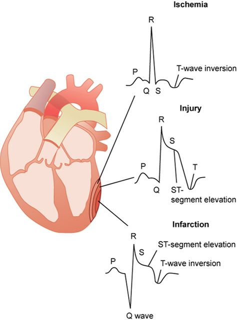 Myocardial infarction: diagnostic studies