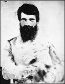 post-mortem pic of Gen. Turner Ashby