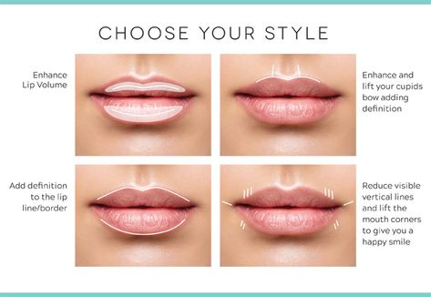 👄 Pucker up and perfect your pout with Juvederm Ultra® XC! dbgplasticsurgery dbg lipinjections fillers juvederm boardcertified results experience sandiegoplasticsurgery Lip Injections Juvederm, Botox Lips, Botox Fillers, Lip Fillers, All Natural Makeup, Natural Lips, Lip Line Filler, Cupids Bow Lips, Botox Cosmetic