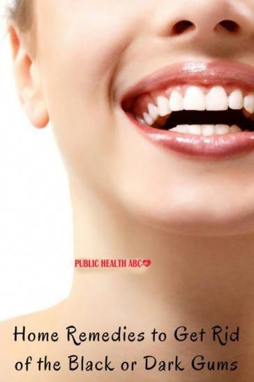 10 Effective Remedies To Treat Black Gums Naturally Health Beauty Abc Importanceofdentalhygiene Black Gums Dark Gums Skin Remedies