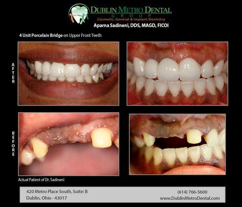 4 Unit Porcelain Bridge on Upper Front Teeth