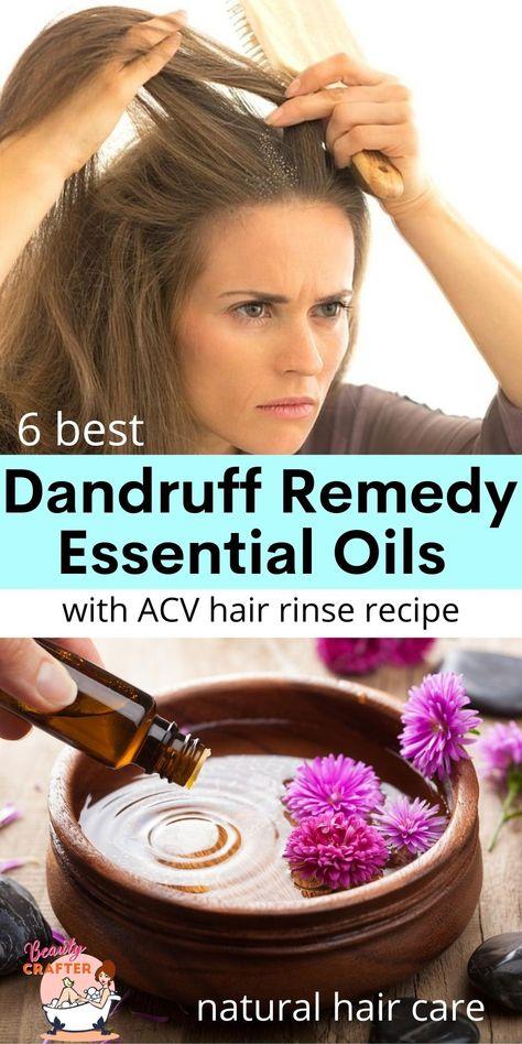 Dandruff Remedy Essential Oils