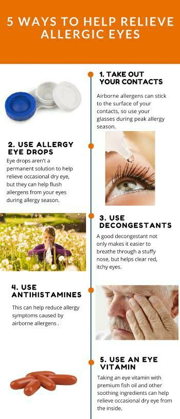 5 Ways To Help Relieve Allergic Eyes Dry Itchy Eyes Eye Allergies Itchy Eyes Allergies