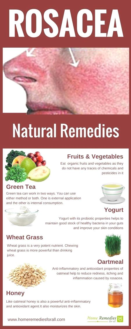 Rosacea Home Remedies Infographic Natural Care Natural