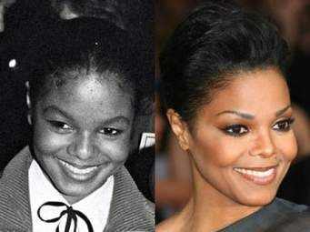Janet Jackson Plastic Surgery before after nose job and cheek implant Picture