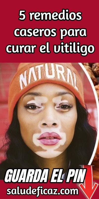 helminták mint a vitiligo oka)