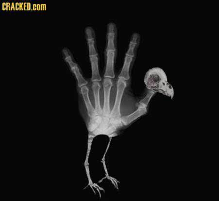 Radiology humor, xray humor, hand turkey