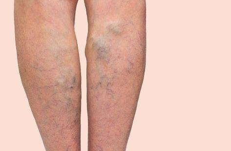 varicoză și greutăți