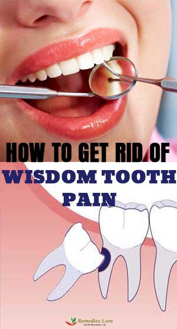 How To Get Rid Of Wisdom Teeth Without Surgery