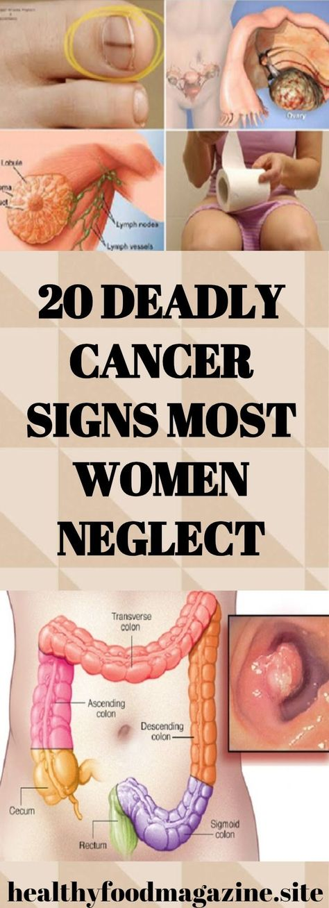20 Deadly Cancer Signs Most Women Neglect!!!
