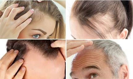 Pin On How To Grow New Hair