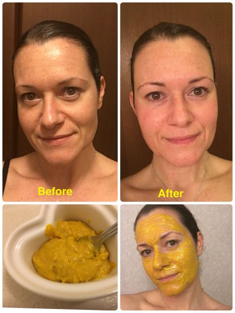 I made a tumeric and coconut oil mask, and the results were insane!! So easy. Just mixed coconut oil and tumeric into a paste and left it in for about 20 minutes. Great to do before a special occasion. It's supposed to be good for wrinkles, dark circles, red blotches and even unwanted hair removal. Pretty cool!!