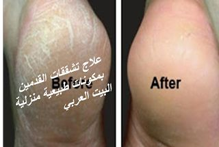 Pin By عزمي صالح On مجلة مغربيات Tattoo Quotes Blog Tattoos