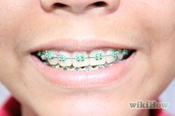 How to keep from getting white spots when your braces come off