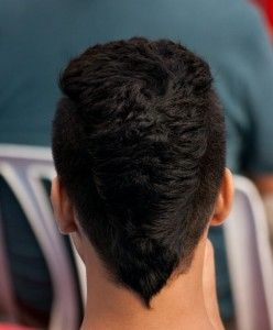 Some Hair Restoration Solutions Which Could Be Helpful