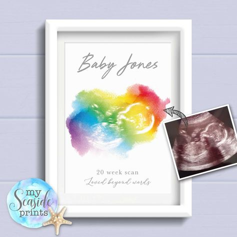 Rainbow baby scan print - My Seaside Prints - These personalised watercolour style rainbow baby ultrasound scan pictures are created from your ba - Sonogram Pictures, Baby Pictures, Rainbow Baby Quotes, Rainbow Baby Announcement, Baby Ultrasound, Baby Shower Presents, Baby Presents, Shower Gifts, Baby Shower Fall