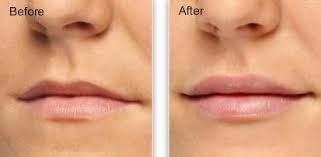 Image result for restylane lips before and after
