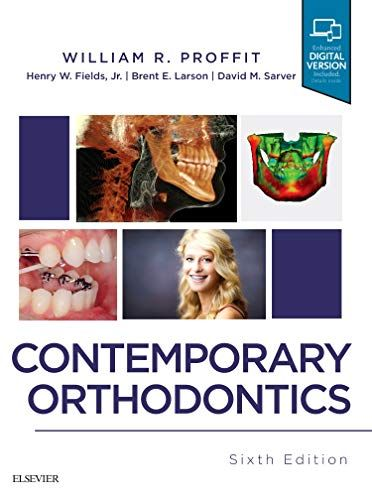 Pin By Dr Anubhav Upadhyay On My Saves Orthodontics Free Books Online Contemporary