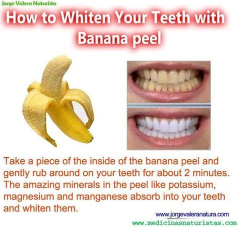 How to Whiten Your Teeth with Banana peel  Read more: http://www.medimiss.net/2012/08/how-to-whiten-your-teeth-with-banana.html#ixzz2bsZeKhJd
