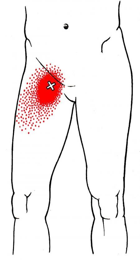 Pectineus | The Trigger Point & Referred Pain Guide