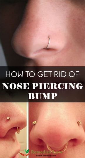 How to Get Rid of Nose Piercing Bump | Piercings | Nose piercing