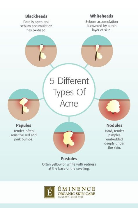 Types Of Acne: The Differences Between Your Bumps And Blemishes