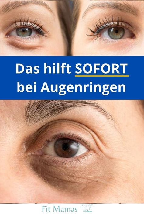 Sofort Trick gegen Augenringe #pickelhausmittel