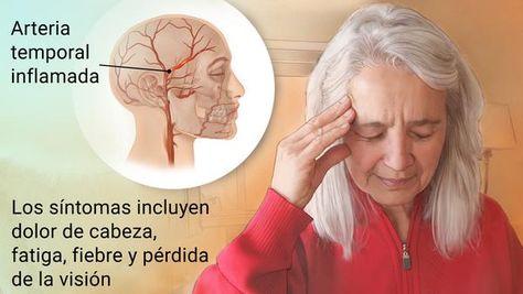 los vasos sanguíneos inflamados