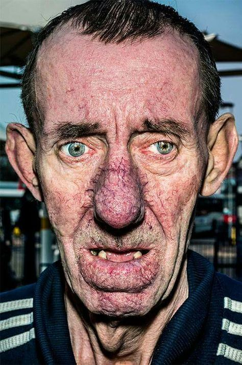 18 best Squalid realism images on Pinterest | Colour photography ...
