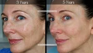 Image Result For Retin A Tretinoin Pictures Before And After
