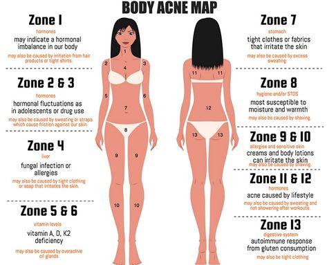 What's the meaning behind your back breakouts? What about the ones on your chest? Decode your skin's cry for help with this acne map...