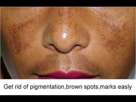 dfd55d020e0ac3583aeef0eb0415828f - How To Get Rid Of Acne Scars On Brown Skin
