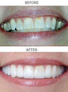 Neuromuscular Dentistry In San Ramon Teethwhiteningremedies Cosmetic Dentistry Cost Cosmetic Dentistry Veneers Veneers Teeth
