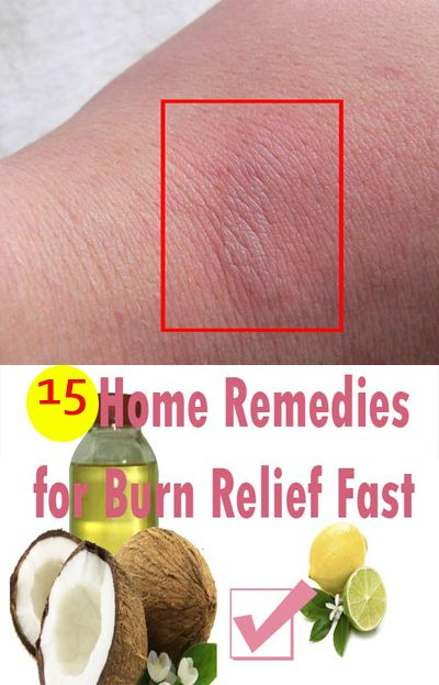How To Treat Minor Burns First Aid Home Remedies Burn Skin Home Remedies Burns Treatment Burn Remedy