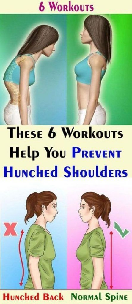 These 6 Workouts Help You Prevent Hunched Shoulders. 10 Minute Workouts