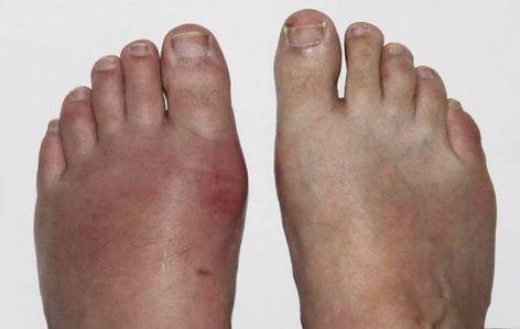 ácido úrico causas e sintomas