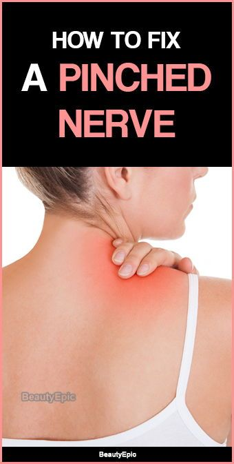 How To Fix A Pinched Nerve Causes Symptoms Treatments Pinched Nerve Pinched Nerve Relief Neck Pinched Nerve Relief